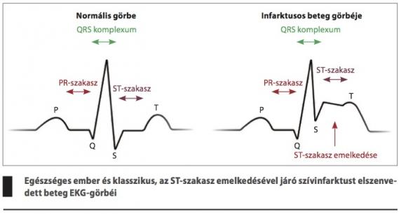 alkalmas-e első fokú magas vérnyomás esetén magas vérnyomás kódok mkb-10