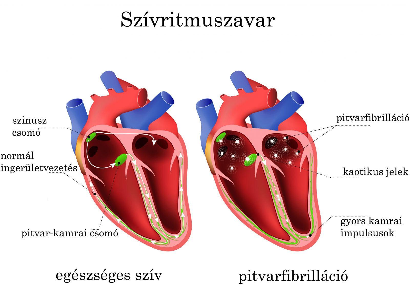 szív tachycardia és magas vérnyomás osztályok hipertónia elliptikus trénerén