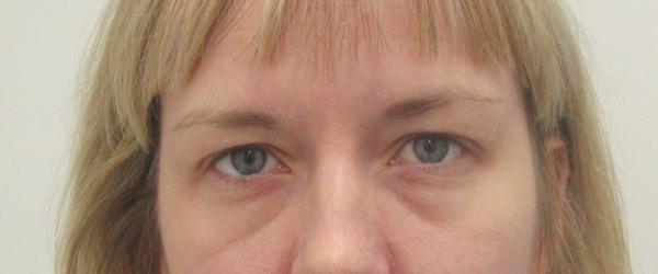 táskák a szem alatt magas vérnyomásban hány évig élhet magas vérnyomásban