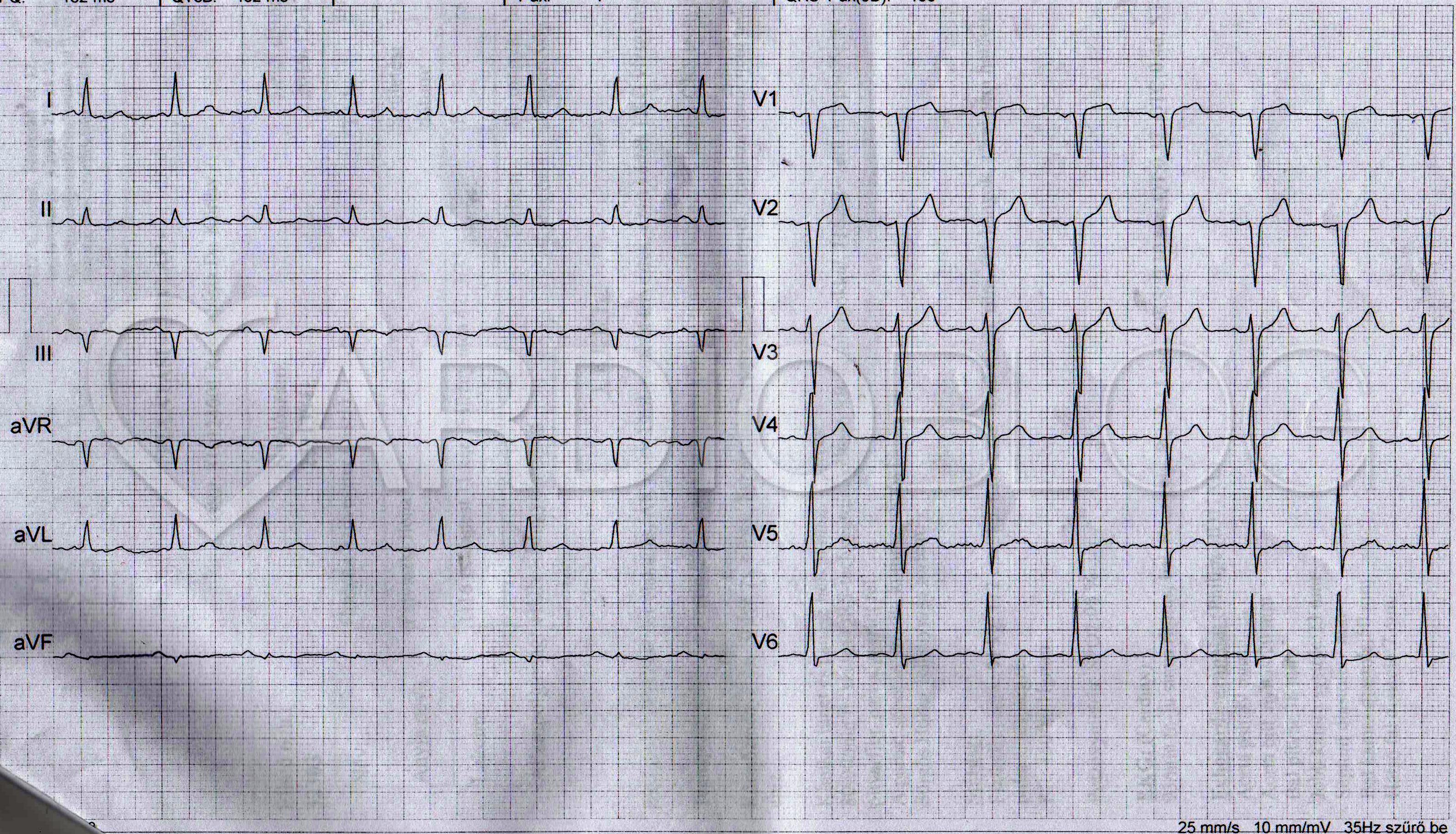 tachycardia hipertónia tünete