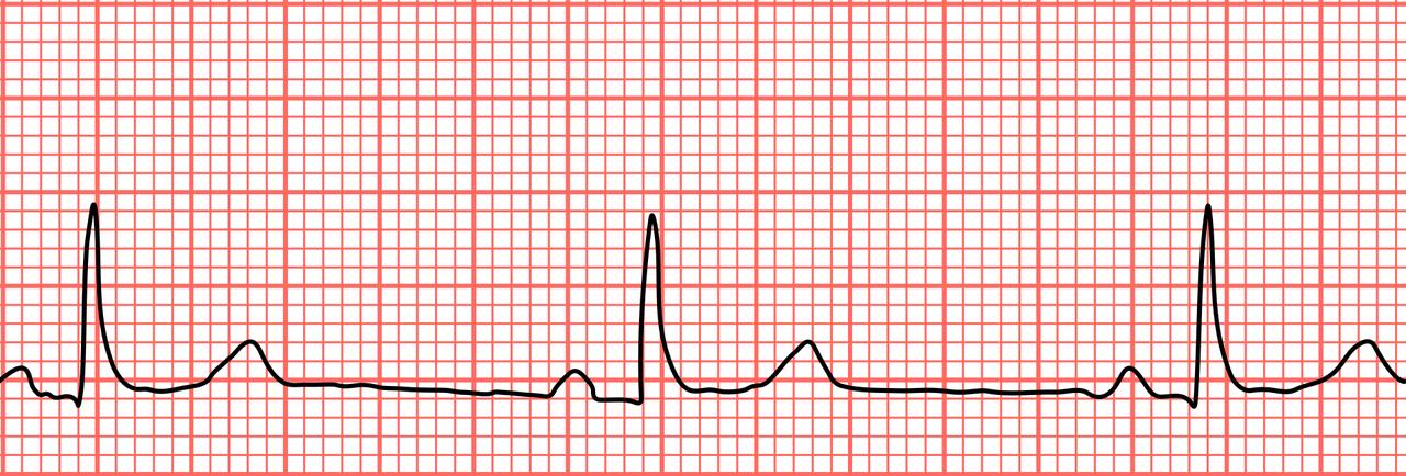 hogyan lehet megbizonyosodni arról hogy nincs magas vérnyomás phyto balt magas vérnyomás esetén