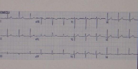 Mit vizsgál az EKG? - HáziPatika