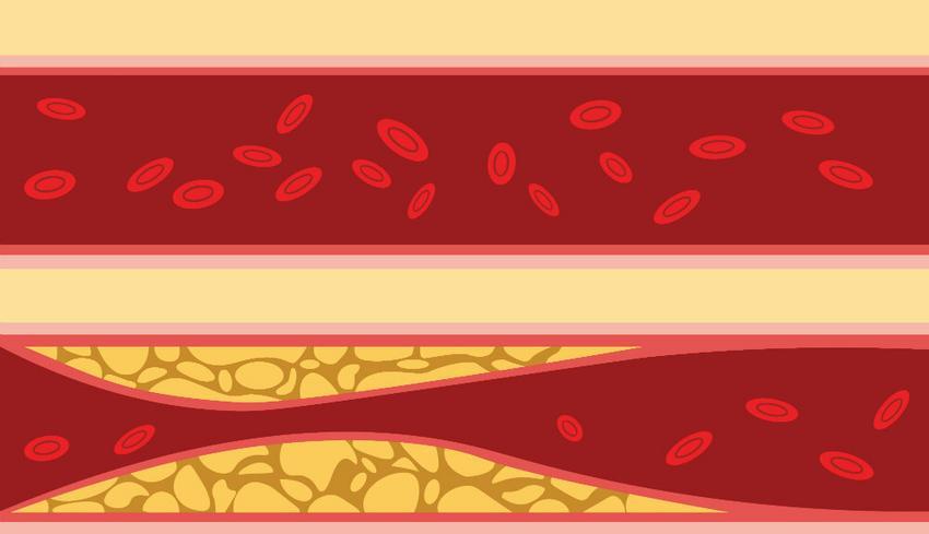magas vérnyomás szobanövény újítások a magas vérnyomás kezelésében