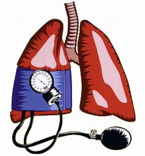 pulmonalis hipertónia jelei hipertónia célszervei