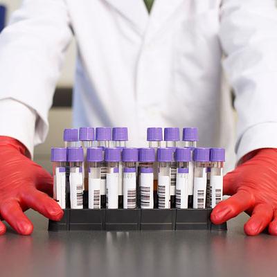 Az anémia és a túl sok hemoglobin is a demencia rizikófaktora