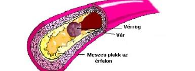 mi a koleszterin magas vérnyomás esetén pont a magas vérnyomásért