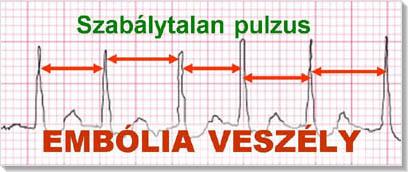 szívritmuszavarok és magas vérnyomás elleni gyógyszerek magas vérnyomás mi ez a betegség