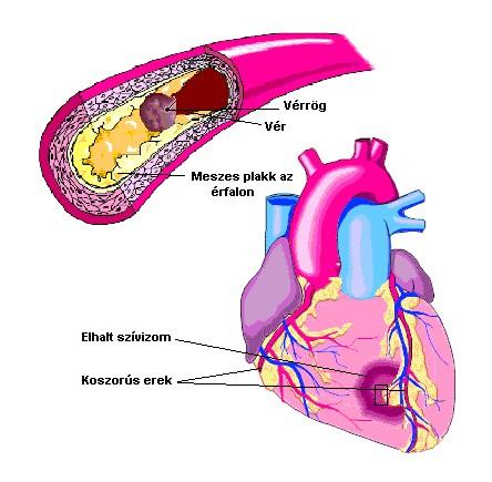 mi a koleszterin magas vérnyomás esetén