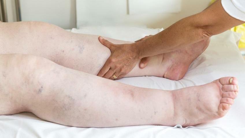 a magas vérnyomás megelőzése a férfiak számára segítség a magas vérnyomáshoz népi gyógymódokkal