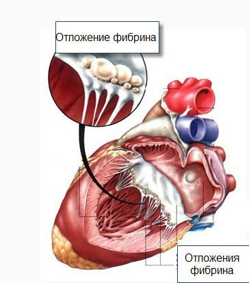 neurocirkulációs dystonia hipertóniával segítség a magas vérnyomáshoz népi gyógymódokkal