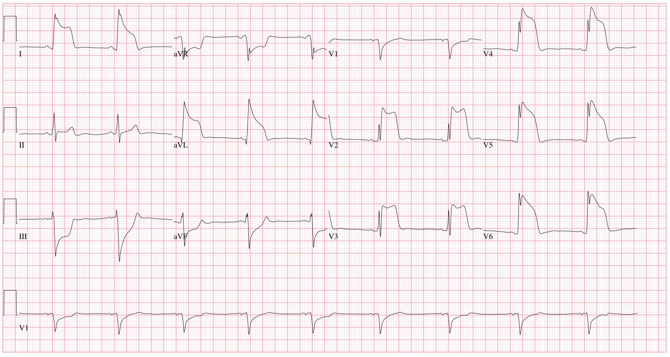 magas vérnyomás 3 stádiumú CVD kockázata 4