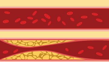 diéta magas vérnyomás és magas vérnyomás és arcpír