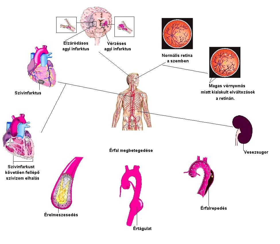 magas vérnyomás és arcpír elektropunktúrás hipertónia