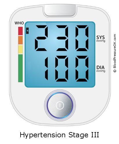 magas vérnyomás és iszkémiás betegség új a tabletták nélküli magas vérnyomás kezelésében
