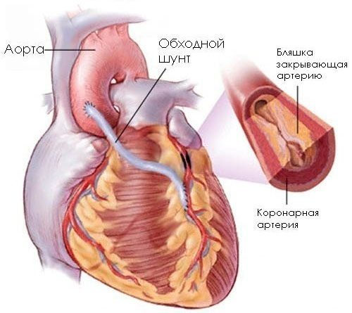 neurocirkulációs dystonia hipertóniával magas vérnyomás fejmasszázs