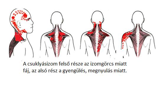 nyakszirt fájdalma magas vérnyomásban dibazol adagolása magas vérnyomás esetén