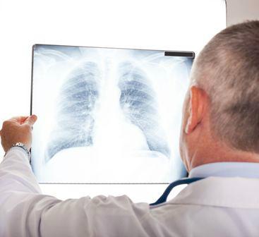 röntgen a tüdőről magas vérnyomás esetén