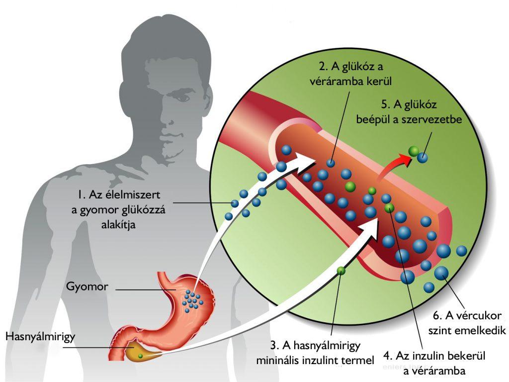 magas vérnyomás 2-es típusú diabéteszes gyógyszerekkel hideg víz magas vérnyomás ellen